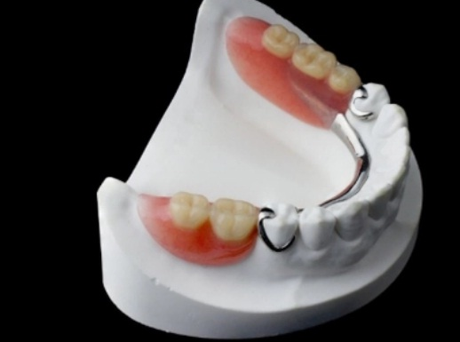 Fix Missing Teeth Issue with Certified Dentures Buy Online in Seattle WA at Cheap Price