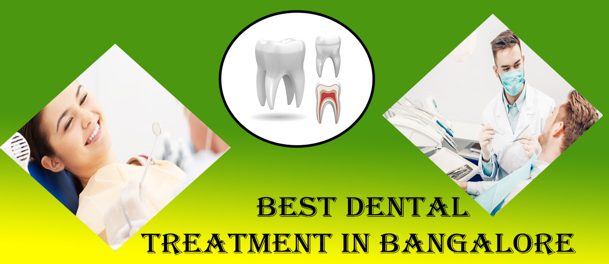Best Dentist in Whitefield Bangalore Famous Top Dental