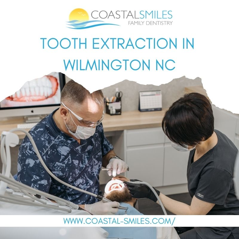 Tooth Extraction in Wilmington NC