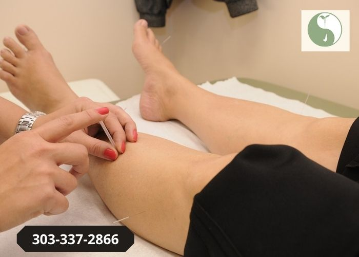 Why Should You Go For Acupuncture Therapy?