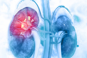 Looking for the Treatment for Kidney Disease in Hyderabad?